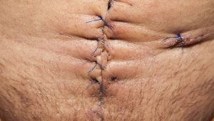 Podcast 12: Acute Appendicitis