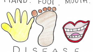 Podcast 47: Hand Foot and Mouth Disease